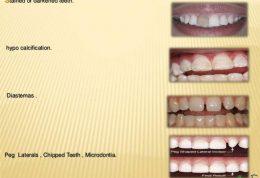 مراقبت در برابر جرم گرفتن دندان
