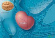 دستاوردهای جدید درمورد سرطان پروستات و عوامل ابتلا