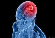 اخبار امیدوار کننده درمان سرطان مغز