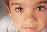 روش های درمانی برای لوچ بودن چشم / استرابیسم