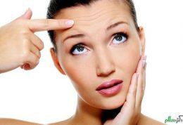 روش های اصلاح عدم تقارن در چشم،ابرو و پیشانی