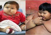 کودک اندونزیایی و اضافه وزن شدید وی
