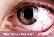 ملتهب و سرخ شدن ناحیه های مختلف چشم