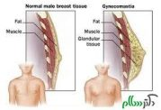 مشکلات ناحیه سینه در مردان