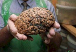 مشکلات روانی و آسیب رساندن به مغز
