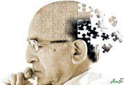 ارتباط میان آلزایمر و کم شدن وزن