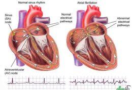 آریتمی قلبی و توصیه های پزشکی در مورد آن
