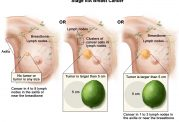 رفع مشکلات سرطانی با این روش جدید