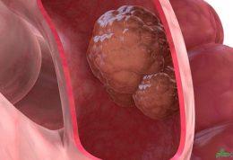 سرطان روده جوانان را تهدید میکند!
