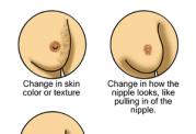 سرطان سینه را اینگونه مهار کنید