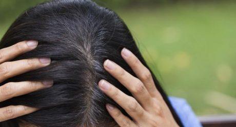 سفید شدن مو از علت تا راه حل