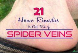 مقابله با رگ های عنکبوتی در نواحی مختلف بدن