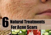 آشنایی با برخی مواد طبیعی مفید برای پوست