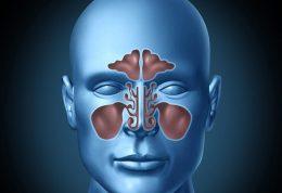 چگونه تشخیص دهید به بیماری سینوزیت دچارید؟