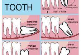 دانستنی هایی پیرامون دندان عقل و جراحی آن