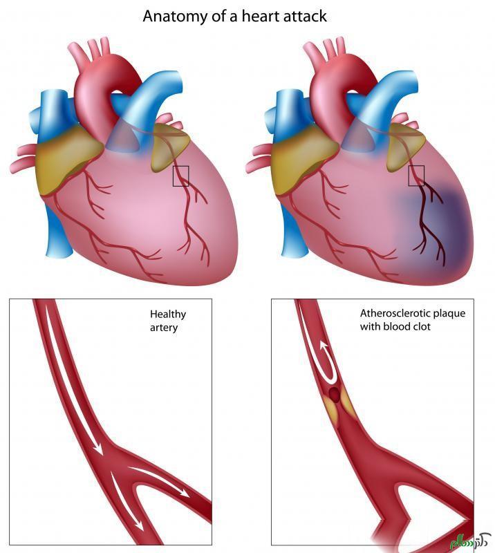 فناوری جدید برای درمان سکته قلبی