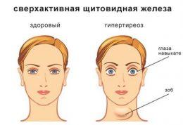 سایز غیرطبیعی چشم ها و این بیماری