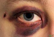 اقدامات اورژانسی خونریزی چشم در تصادفات [فیلم]