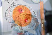 بررسی انواع مختلف تومور مغزی