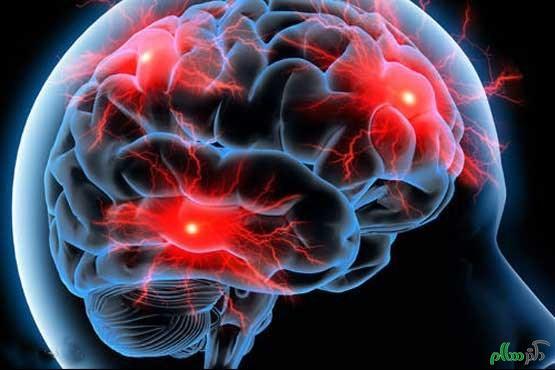 ریسک بالای خونریزی مغزی در زنان سیگاری