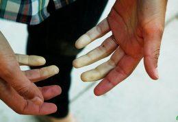 کاهش فشار خون و این نشانه ها در دست و پا