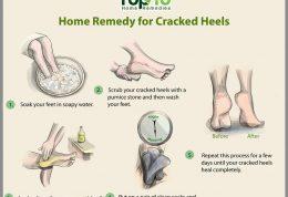 ترک کف پا و توصیه های طب سنتی