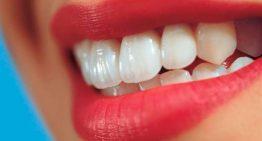 لواشک و لیموترش ، مؤثر در پوسیدگی دندان
