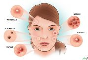 جوش های مختلف در مناطق خاصی از پوست