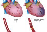 شناخت درمان های تپش قلب