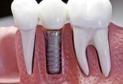7 نکته مهم درباره ایمپلنت دندانی