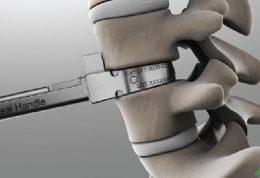 انواع جراحی های دیسک کمر [فیلم]