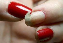 شکستن ناخن ها، دردسر عظیم خانم ها