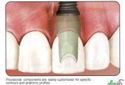 وظیفه یک دندانپزشک در برابر انجام ایمپلنت