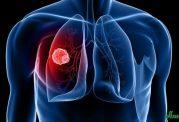 سرطان ریه از کجا می آید و چگونه درمان می شود [فیلم]