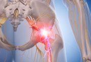 درمان سیاتیک با داروهای طبیعی