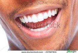عکس سلفی و تاثیر آن بر دهان و دندان