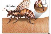 خطرات نیش زنبور عسل برای سلامتی