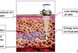 آمادگی های مختلف برای جراحی آبدومینوپلاستی