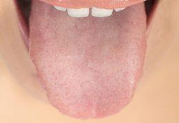 عارضه های مربوط به  دهان و دندان