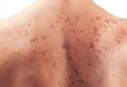 یک سوم اهالی کویینزلند به سرطان پوست مبتلا هستند!