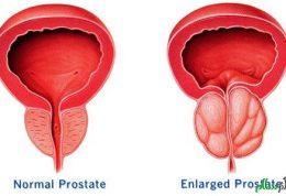 سرطان پروستات با این علائم همراه است