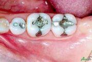آشنایی با یک ماده سمی در دهان،آمالگام دندانی