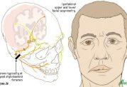 تشابه یک بیماری با سکته مغزی!