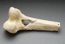 بررسی علل  ابتلا به سرطان استخوان