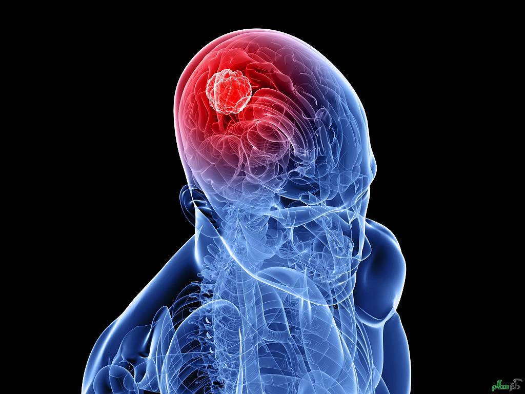 تومورهای مغزی و حقایقی که از آن بی خبرید