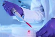 سرطان خون با این روش جدید درمان میشود؟