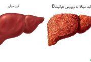 خطر ابتلا به هپاتیت B در نوزادان