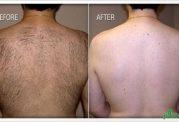 لیزر موهای اضافی بدن در مردان