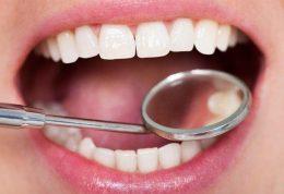 از وجود میلیون ها دندان در دهان تان خبر دارید؟