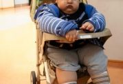 جراحی چاقی اطفال